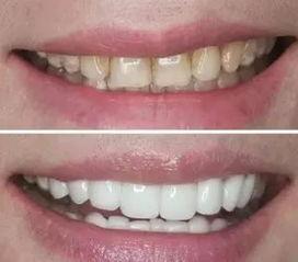 牙齿保健 洗牙 美白牙齿 牙齿美白的4个误区