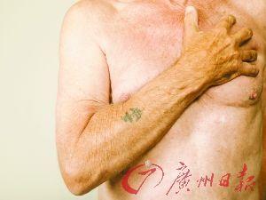 除了急性心肌梗死,动脉瘤、气胸也会引起急性胸痛,在短时间内危及...