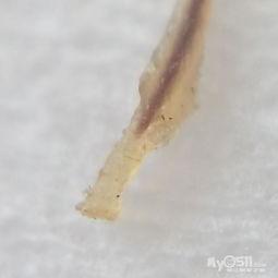 猪肉中的寄生虫 第一次见到实物,实拍