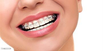 牙齿矫正的整个步骤是怎样的