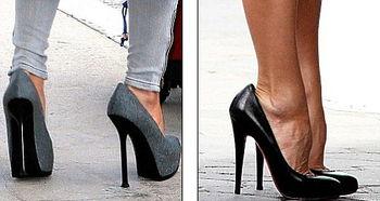 贝嫂爱超高跟鞋后果严重 脚趾变形需手术