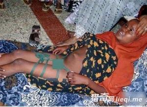 """拉伯人聚居区:老妇人对新娘""""破... 埃塞俄比亚:部落女子自残诱惑男..."""