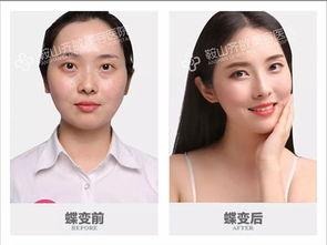 可见鼻子的形状改善对于中国人是多么重要.目前比较常见的隆鼻手术...