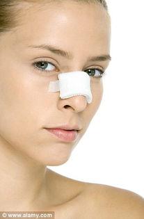 伊朗女性热衷鼻子整形 花大钱冒风险不美不罢休