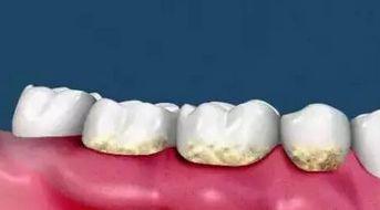 ...样存在着坚硬的牙结石.这些牙结石开始刺激牙槽骨的吸收-看完下...