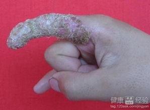 男性疾病生殖器疱疹的治疗