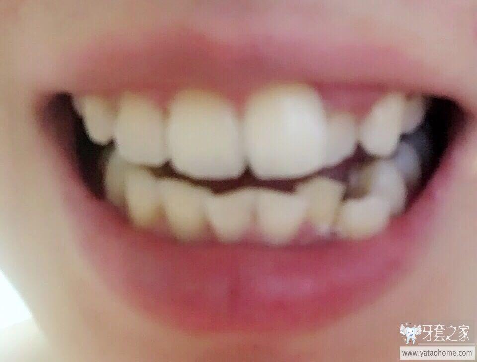 还没整牙 这种情况要带牙套吗 带牙套需要拔牙吗